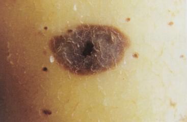 图文详解马铃薯晚疫病症状及药剂防治方案(最全面)-薯卫士_马铃薯支持平台